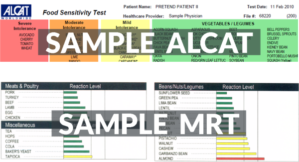 Sample ALCAT & MRT Results